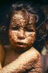 smallpox pic